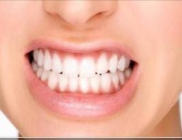 دندان قروچه (براکیسم)؛ علل و درمان